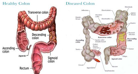 healthy colon hydrotherapy